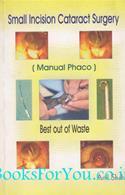 Small Incision Cataract Surgery (Manual Phaco)
